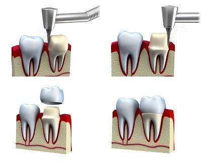 dental crown | dental bridge | rochester mn