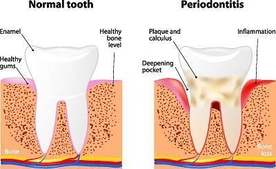 periodontal treatment | gum disease | rochester mn