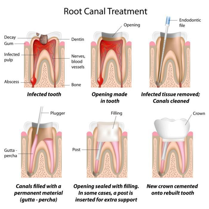 root canal therapy | root canals | rochester mn