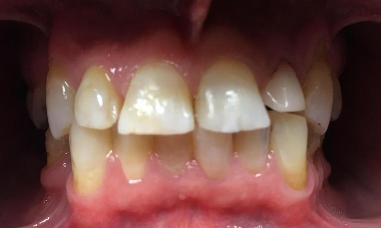 Four-Anterior-Crowns-Before-Image